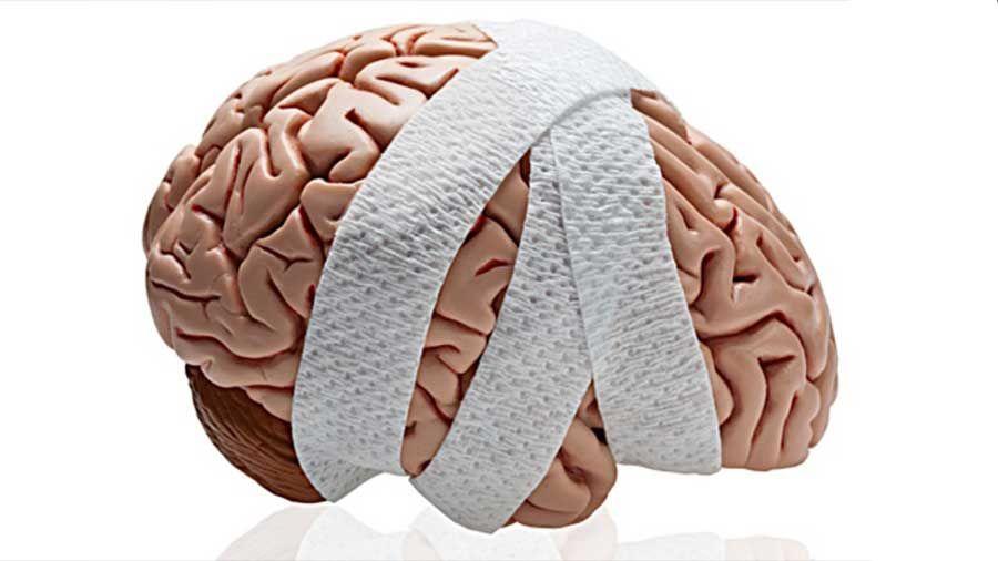 Los Mejores Abogados en Español de Lesiones Cerebrales Para Mayor Compensación en Diamond Bar California